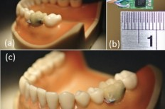 Tooth Sensor Collects Data On Your Daily Eating And Smoking Habits